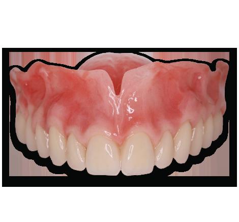 denture-natural