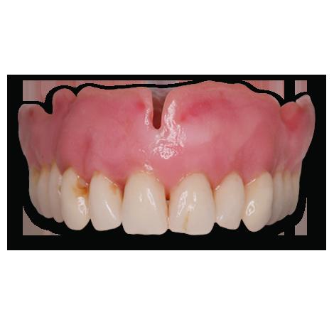 denture-signature